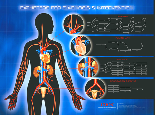 cathether for diagnostic