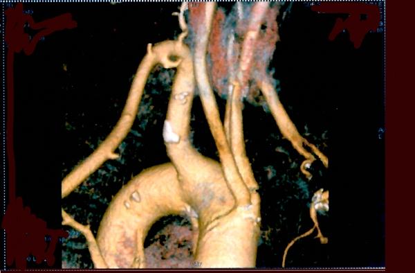 Artère sous clavière rétrooesophagienne absence du TBCD