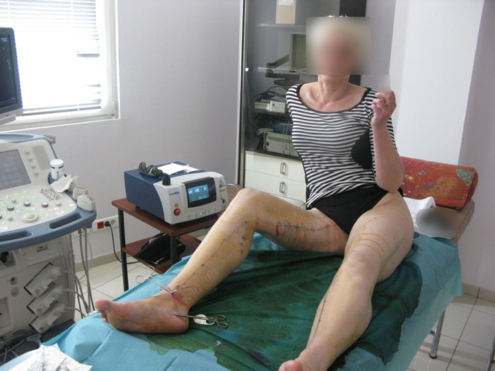 Endovenous laser treatment.